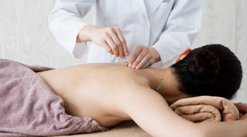 Best Acupuncture in Regina